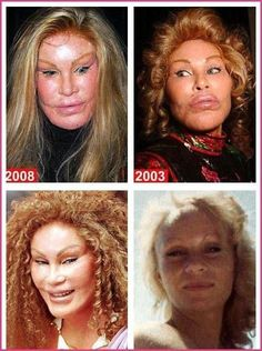 Here are Plastic Surgery Gone Wrong – 20 Worst Celebrity Surgery Before After Photos. Celebrity plastic surgery gone wrong is a disaster for people who make their living in the limelight. Check out the 20 worst celebrity plastic surgery results. Botched Plastic Surgery, Bad Plastic Surgeries, Plastic Surgery Gone Wrong, Celebrity Plastic Surgery, Worst Celebrities, Celebs, Celebrities Before And After, Without Makeup, Body Modifications