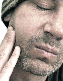 Multiple sclerosis facial