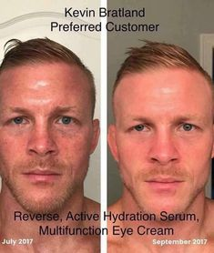 24 Best Before After Men Images Rodan And Fields Rodan Life