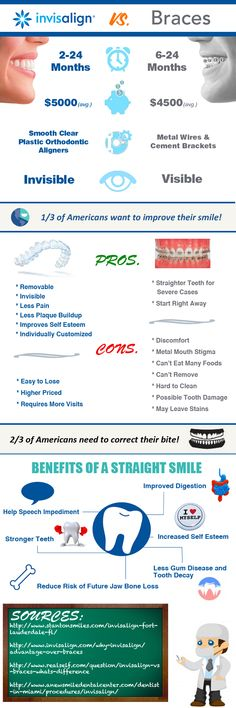 Well this is helpful. XD problem if you have just maybe three crooked teeth or so.