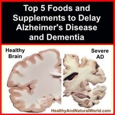 Type 3 Diabetes= Alzheimer's or Dementia: Top 5 foods: Tumeric, Red Wine, Peanuts (resveatrol), Healthy Fats (Omega 6, Omega 3, Omega 7), Vitamins B (B6, B12) and Vitamin E