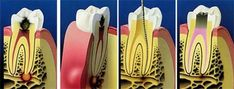 Root canal treatment, also known as endodontic treatment, is a dental procedure in which the diseased or damaged pulp (core) of a tooth is removed and the inside areas (the pulp chamber and root canals) are filled and sealed.