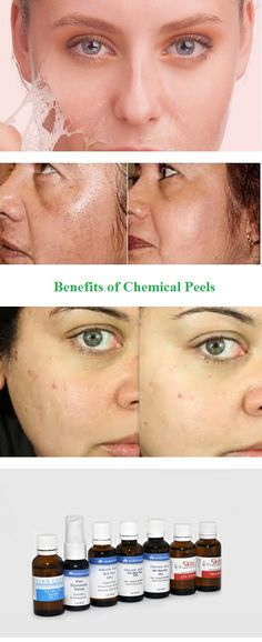 Chemical peels are a great way to improve your looks, reduce signs of aging, or simply get rid of that annoying acne. While some people find the word . Diy Chemical Peel, Salicylic Acid, Perfect Skin, Health And Beauty Tips, Some People, Body Care, Improve Yourself, Beauty Hacks