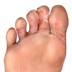 Symptoms and Types of Athlete's Foot