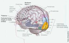 A comprehensive descriptiion of the perception and cause of visual snow, aka snowy vision Eye Anatomy, Anatomy Study, Visual Snow, Occipital Lobe, Visual Cortex, Frontal Lobe, Snow Images, Perception, Migraine