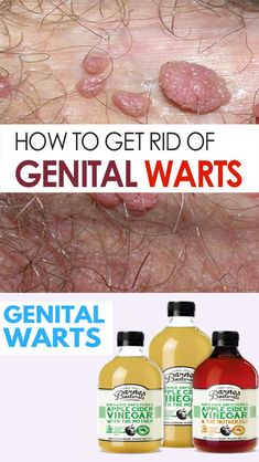 hpv warts how to remove)