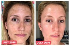 Tretinoin Before And After, Before And After Acne, Vitamin C For Face, Clear Skin Fast, Healthy Skin Tips, Vitamins For Skin, Korean Skincare Routine, Skin Care Tools, Face Skin Care