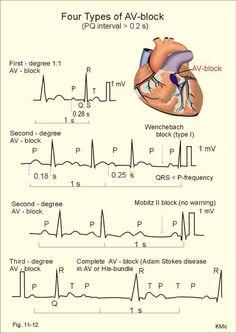 ECG: Heart blocks