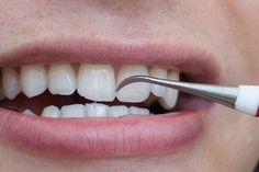 Top Oral Health Advice To Keep Your Teeth Healthy. The smile on your face is what people first notice about you, so caring for your teeth is very important. Unluckily, picking the best dental care tips migh Teeth Health, Oral Health, Dental Health, Dental Care, Gum Health, Dental Hygienist, Health Diet, Teeth Whiting At Home, Teeth Bleaching