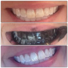 Whitening teeth with charcoal capsules