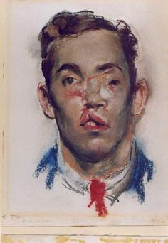 Henry Tonks watercolour documenting facial injuries of the First World War. Types Of Portrait, Portrait Art, A Level History, Science Museum, A Level Art, Medical History, Gcse Art, Gothic Art, Figure Painting