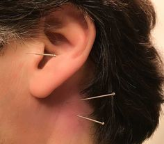 Acupuncture Quiets Tinnitus ... (2/2016) Yiming and GB12 with SI19 are needled here. #TinnitusTreatments