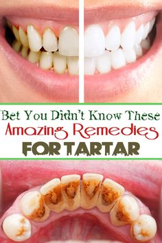 Bet You Didn't Know These Amazing Remedies for Tartar #Health #Teeth #Beauty ==
