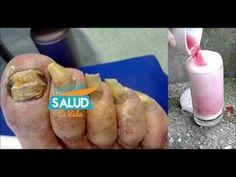 Diga adiós a los hongos de las uñas Con sólo 2 Ingredientes fabuloso Rem...