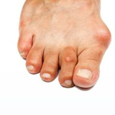 Procedure Of Hammer Toe Surgery. This is what happens to people who wear a lot of HORRIBLE shoes.
