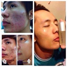 No more acne! Just beautiful skin! www.buynucerity.com/354404
