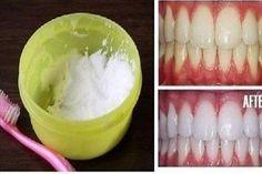 Ezzel a recepttel pillanatok alatt hófehér fogaid lehetnek!