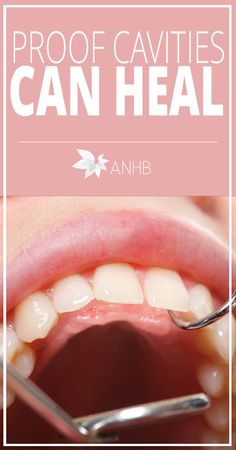 Proof Cavities Can Heal - All Natural Home and Beauty