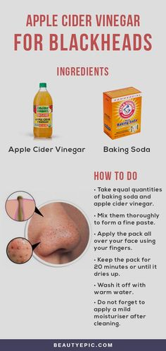 Can Apple Cider Vinegar Help You Get Rid Of Blackheads?