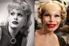 Before Getting Lip Fillers: Everything You Need to Know – My hair and beauty Extreme Plastic Surgery, Botched Plastic Surgery, Top Plastic Surgeons, Bad Plastic Surgeries, Plastic Surgery Gone Wrong, Celebrity Plastic Surgery, Jackie Stallone, Nikki Cox, Pete Burns