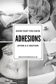 Lysis Of Abdominal Adhesions Symptoms, Intestinal, Uterine ...