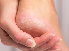 Dry feet: With these 5 home remedies they become soft again Wonder woman – Hausmittel Foot Detox Soak, Beauty Skin, Hair Beauty, Soft Heels, Feet Show, Flaky Skin, Feet Care, Pedicure, Physical Therapy