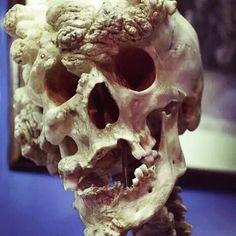 "the skull of Joseph Merrick (known as ""The Elephant Man"")."
