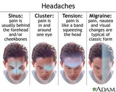 Different types of headaches and how to tell the difference between them.