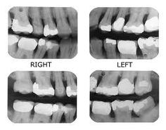 Dentist visit dental root canal treatment,how to heal tooth decay and avoid fillings pediatric dental office,dentist removing plaque from teeth local teeth whitening. Dental Assistant Study, Dental Hygiene, Dental Health, Dental Photos, Dental Videos, Dental Anatomy, Dental Life, Dental Facts, Dental Crowns
