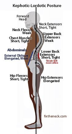 how to fix upper back pain and pressure on soine