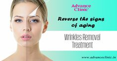 Why are you worried about your aging skin and wrinkles in the face? Catch the world class anti-aging treatment and get back your natural skin again.