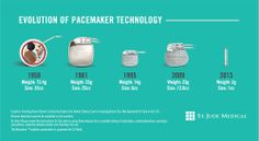 Evolution of Pacemaker