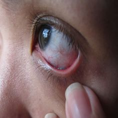 Excellent Home Cures And Remedies For An Eye Infection