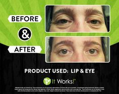 Goodbye laugh lines!    Message me on my fb page www.facebook.com/itworksredmond or go to www.itworkswithnicole.  #itworks #itworksglobal #wraps #bodywraps #crazywrapthing #tighten #tone #firm #trim #weightloss #fitness #health #healthy #wellness #summer #summerready #summerbody #body #love
