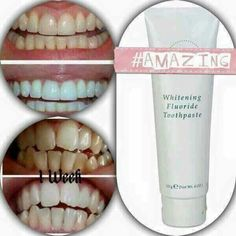 Look at these results! AP-24 Whitening Toothpaste is amazing! Message me to order yours. https://www.facebook.com/ccarrollagelessbeauty/
