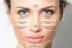 Acne face map and map explanation. Treatment for acne. Explanation of acne face map. What is acne face map. Explanation of Acne face map and face mask. Spot Treatment, Acne Treatment, Doterra Acne, Gesicht Mapping, Pimples On Chin, Face Mapping, Acne Causes, Make Up, Acupuncture