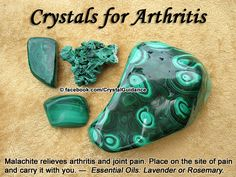 Crystal Guidance: Crystal Tips and Prescriptions - Arthritis. Top Recommended Crystals: Malachite. Additional Crystal Recommendations: Apatite, Blue Lace Agate, Copper, or Rhodonite. Essential Oils: Chamomile, Lavender, or Rosemary Arthritis is associated with the Root chakra. Carrying your crystal with you or wearing it as a bracelet is the ideal way for the crystals to help with arthritis. You can also hold the crystal to the site of pain for 15-20 minutes a day as needed.