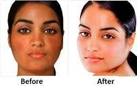 Bobbie Know's Best: L-Glutathione Skin Whitening Supplement-Secret to the Stars Brighter Skin