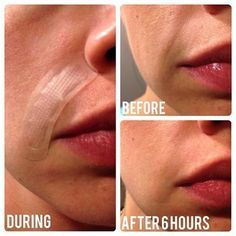 """We like the idea of """"waking up to success""""  This incredible before and after picture shows us how one lady removes smile lines in just 6 hours.  No injections, no botox, no doctor's visit!  Take a look at your skin and simply decide to #loveitorfixit"""
