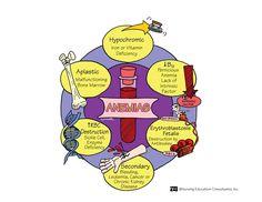 nurse-with-a-smile: Types of Anemias: this will come in handy! Rn Nurse, Nurse Life, Nurse Stuff, Med Surg Nursing, Cardiac Nursing, Surgical Nursing, Pediatric Nursing, Rn School, School Stuff