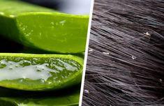Schuppen sind unschön und lästig. Weiße Flöckchen im Haar oder auf den Schultern wirken ungepflegt. Oft sind diese sehr hartnäckig und können auch auf ein Gesundheitsproblem hinweisen. Chemische Produkte sind jedoch oft sehr aggressiv und bringen meist nicht die erwünschte Wirkung. Deshalb empfehlen wir natürliche Mittel gegen Schuppen.