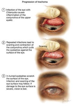 Trachoma, a disease caused by bacteria called Chlamydia trachomatis, affects more than 80 million individuals worldwide, and 8 million persons are blind because Opthalmic Technician, Diseases Of The Eye, Eye Anatomy, Eye Facts, Nursing Notes, Nursing Tips, Human Anatomy And Physiology, Medical Anatomy, Medical Science