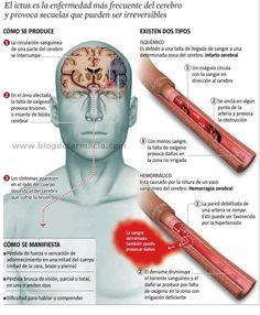 #Ictus: causas, síntomas y tipos #infografia #inphographic
