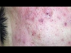 Blackheads Extractions Draven 6th Treatment - YouTube Deep Blackheads, Blackhead Extraction, Hello Youtube, Latest Video
