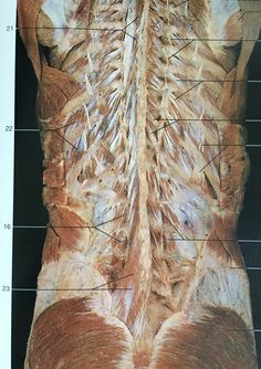 Multifidus muscle another core and deep muscle, it's under iliocostalis and longissimus muscles Gross Anatomy, Brain Anatomy, Human Body Anatomy, Muscle Anatomy, Anatomy And Physiology, Hand Therapy, Massage Therapy, Physical Therapy, Muscular System Anatomy