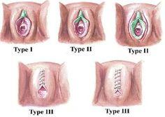 Uncircumcised girls