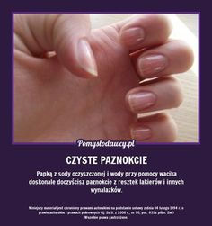 Beauty Hacks Nails, What Makes You Beautiful, Cosmetic Treatments, Healthy Nails, In Case Of Emergency, Natural Cosmetics, Health Advice, Diy Beauty, Beauty Tips