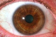Sanguine Eyes: The Sanguine iris type is calledhematogenicby iridologists. The iris color is usually brown or hazel, and its fibers tightly or densely woven; as the Sanguine is considered to be the most balanced and equable of temperaments in Greek Medicine, so the densely woven hematogenic type is considered to be the most desirable by iridologists.