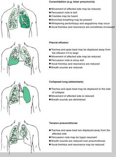 Nurse stuff: Lung conditions