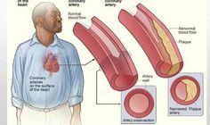 Esta bebida rompe bloqueos y limpia las arterias coronarias !!! ~ La Buena Salud Es Vida